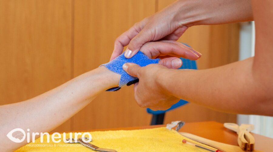 Ferulas: la artesania en neurorrehabilitación